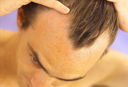 hombre con adelgazamiento del pelo
