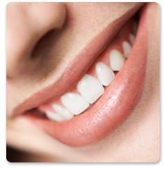 mujer con dientes limpios