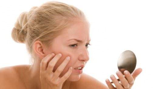 Como Tratar el Acne de Adulto